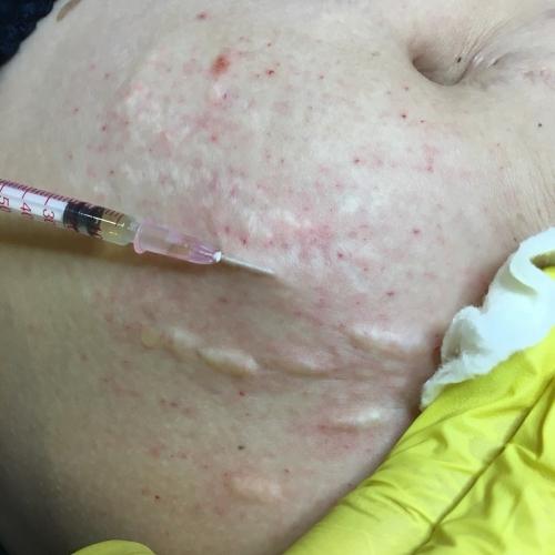Обучение мезотерапии_1